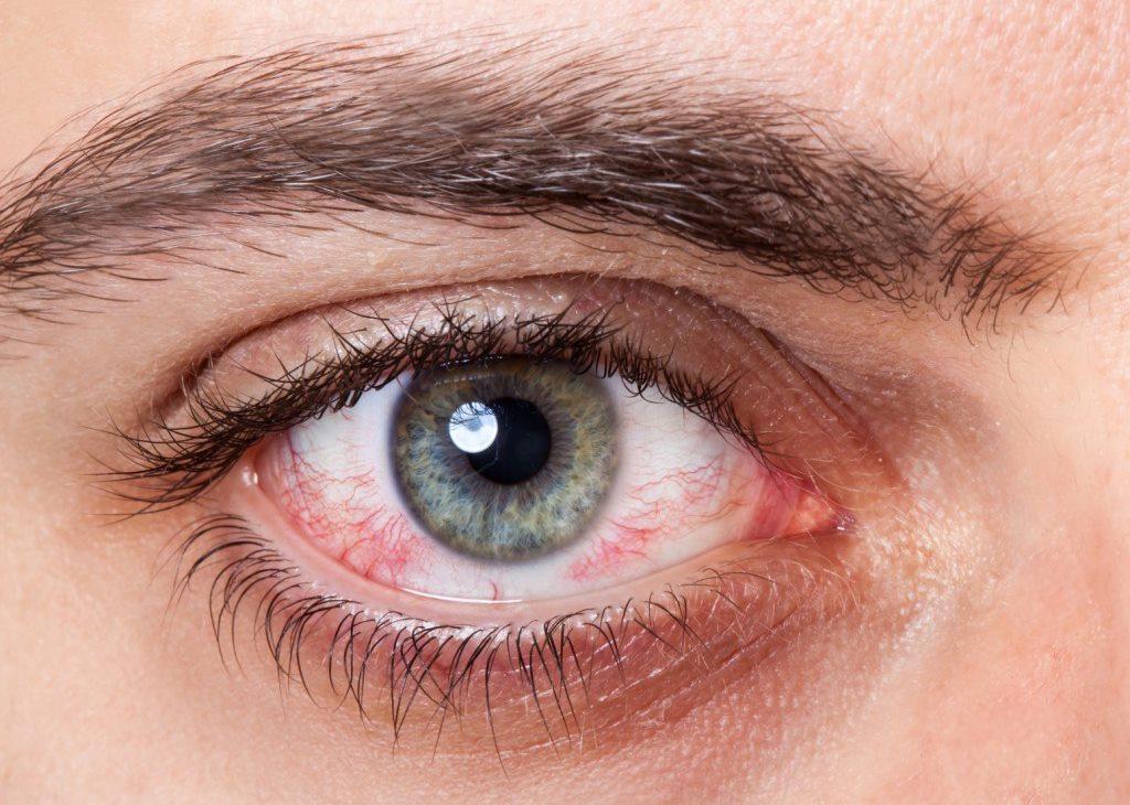 Khô mắt là bệnh về mắt thường gặp ở dân văn phòng